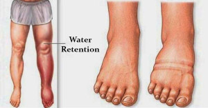 water-retention-causes